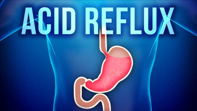 Acid Reflux - This Is How I Fixed It Without Drugs